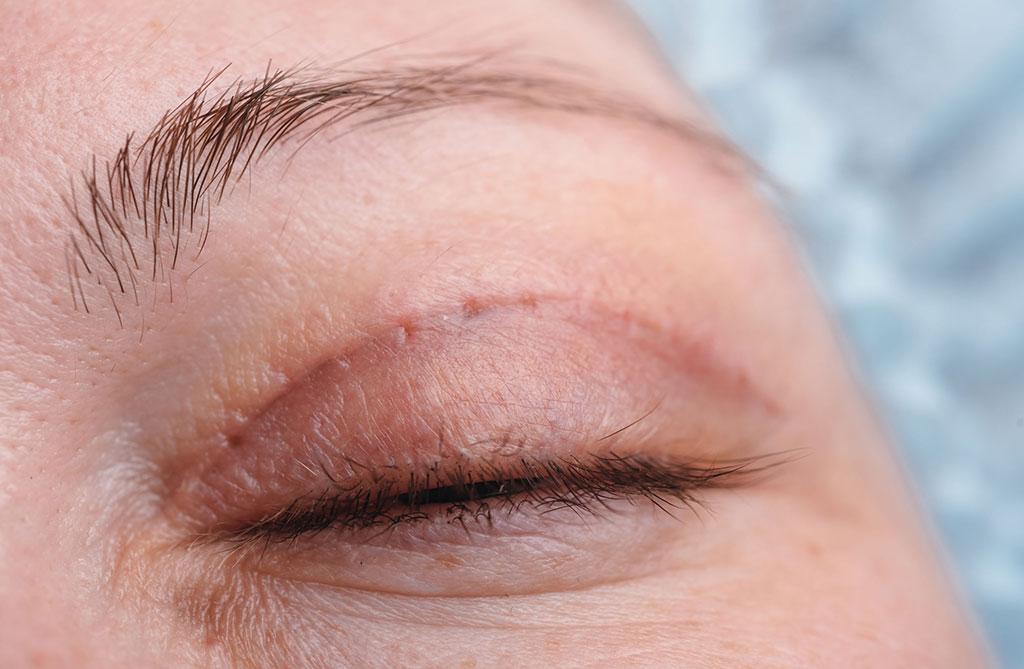 Blepharoplastie - chirurgie Montpellier