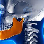 chirurgie du maxillaire et de la mandibule